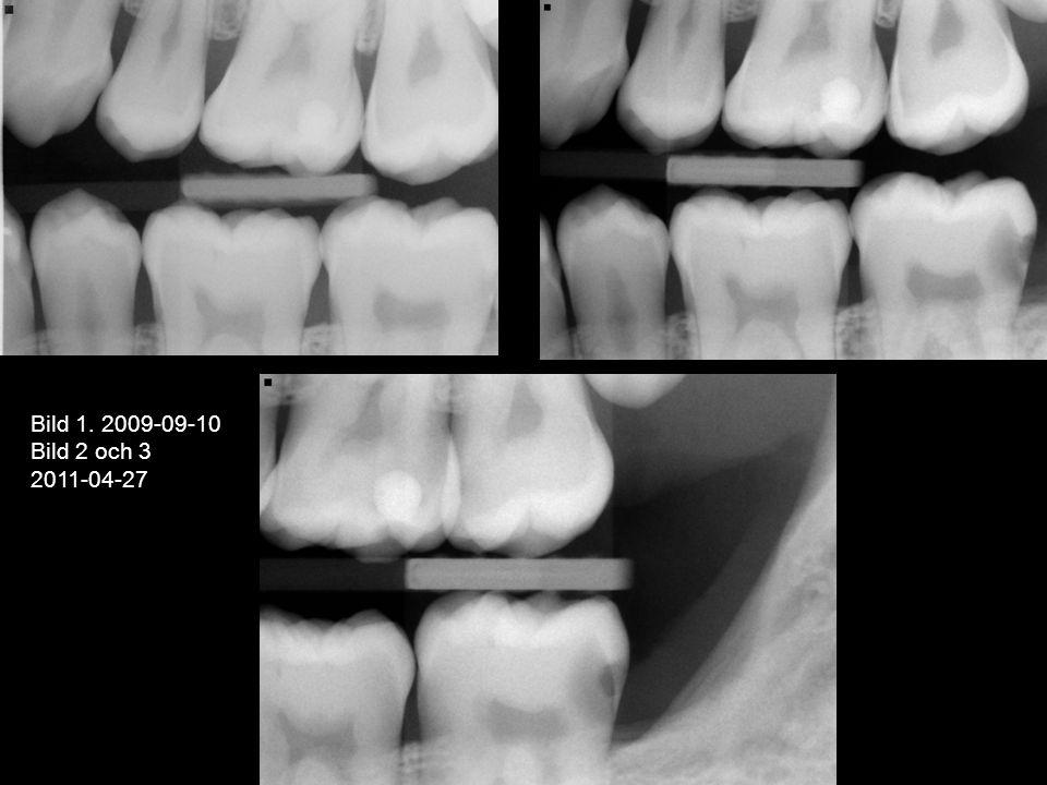 Bild 1. 2009-09-10 Bild 2 och 3 2011-04-27