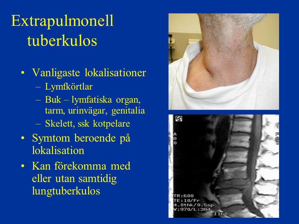 Extrapulmonell tuberkulos