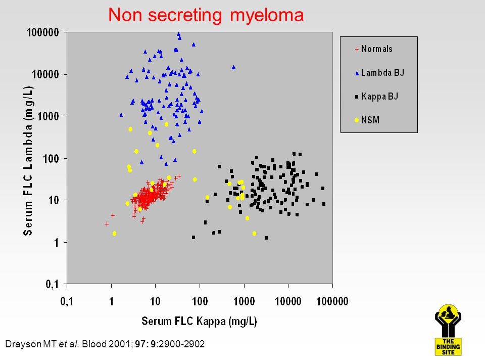 Non secreting myeloma Drayson MT et al. Blood 2001; 97: 9:2900-2902