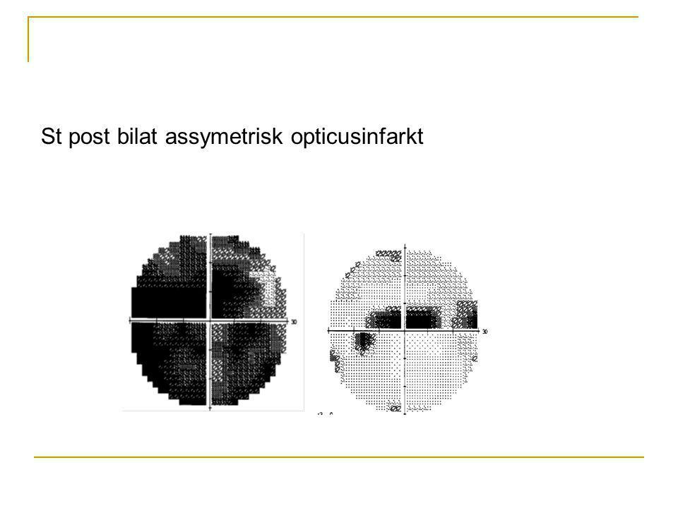 St post bilat assymetrisk opticusinfarkt