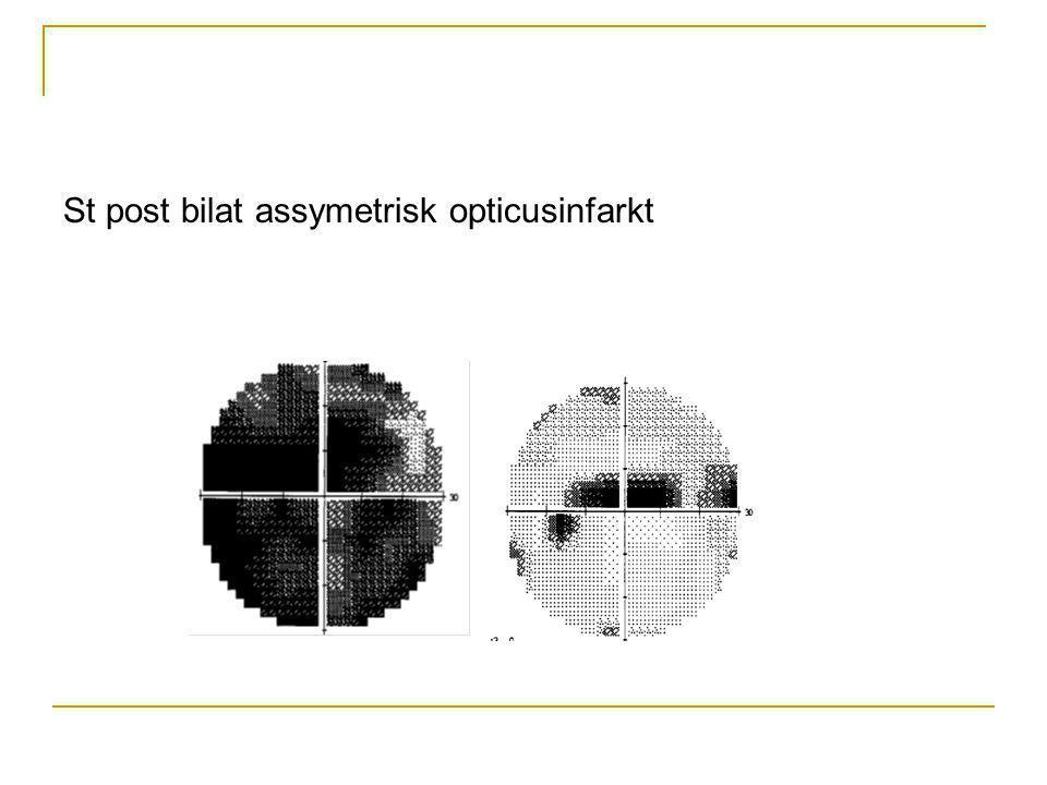 St post bilat assymetrisk opticusinfarkt