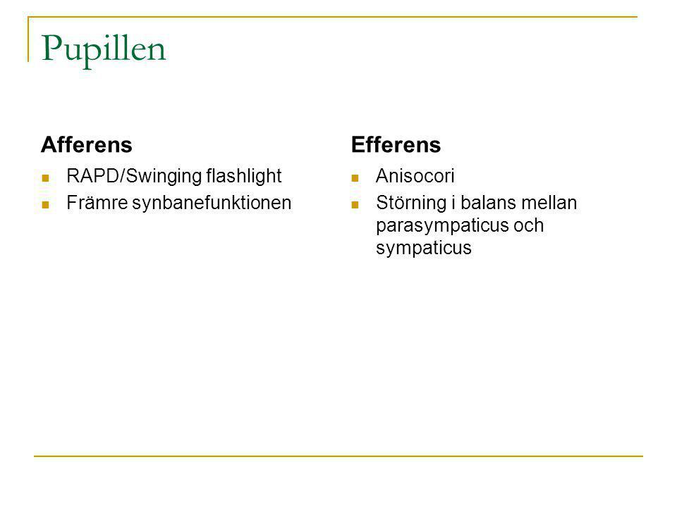Pupillen Afferens Efferens RAPD/Swinging flashlight