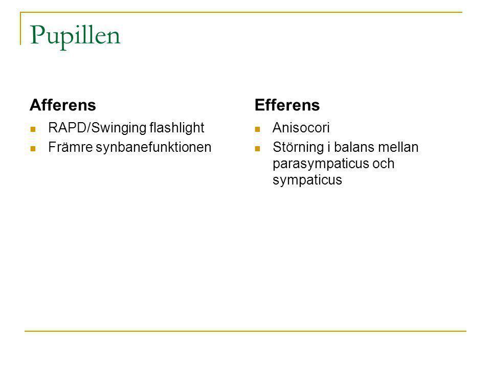 Pupillen Afferens Efferens RAPD/Swinging flashlight