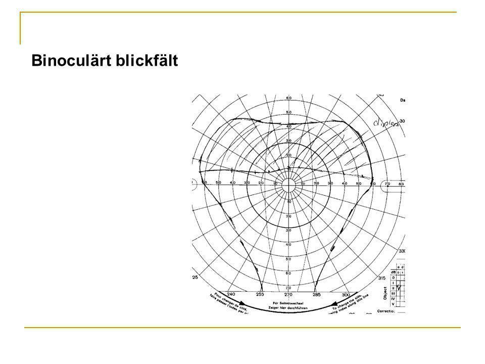 Binoculärt blickfält