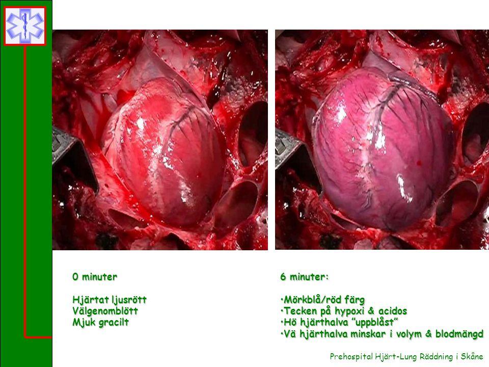 Tecken på hypoxi & acidos Hö hjärthalva uppblåst