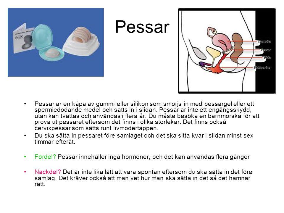 Pessar