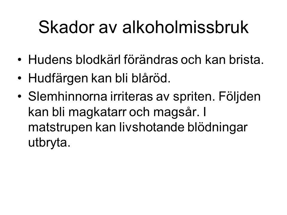 Skador av alkoholmissbruk