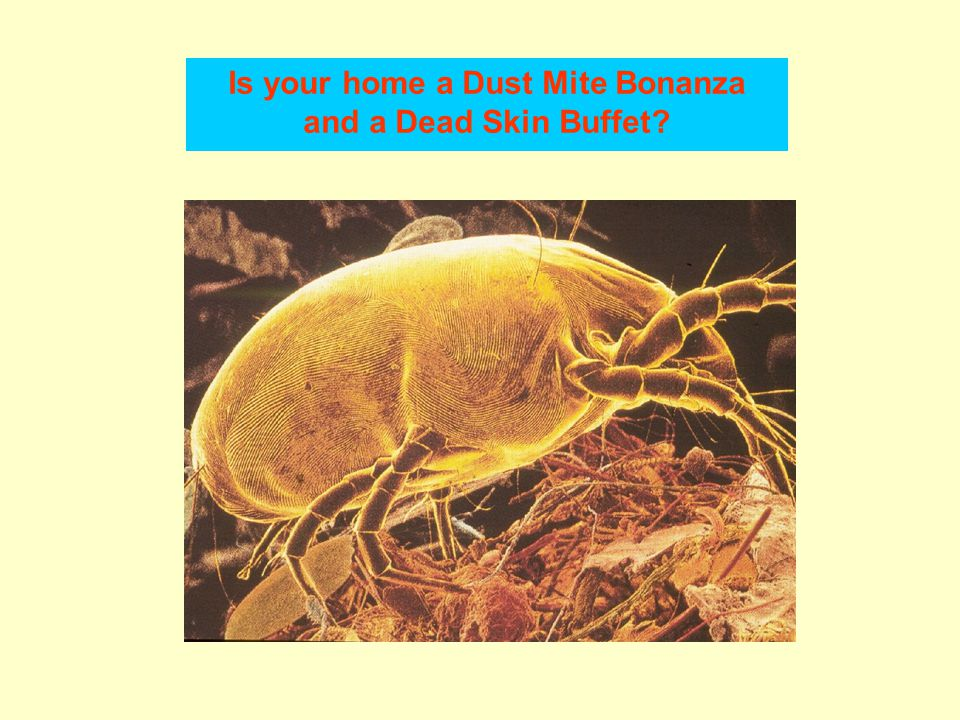 Is your home a Dust Mite Bonanza and a Dead Skin Buffet