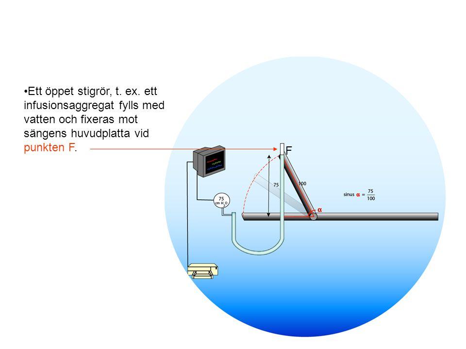 Ett öppet stigrör, t. ex. ett infusionsaggregat fylls med vatten och fixeras mot sängens huvudplatta vid punkten F.