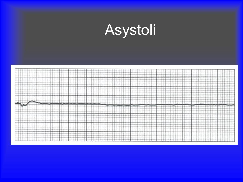 Asystoli Mention checking leads and turning up ECG gain