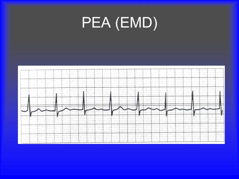 PEA (EMD) Pulseless Electrical Activity is an impalpable pulse in the presence of a rhythm that should produce a pulse.