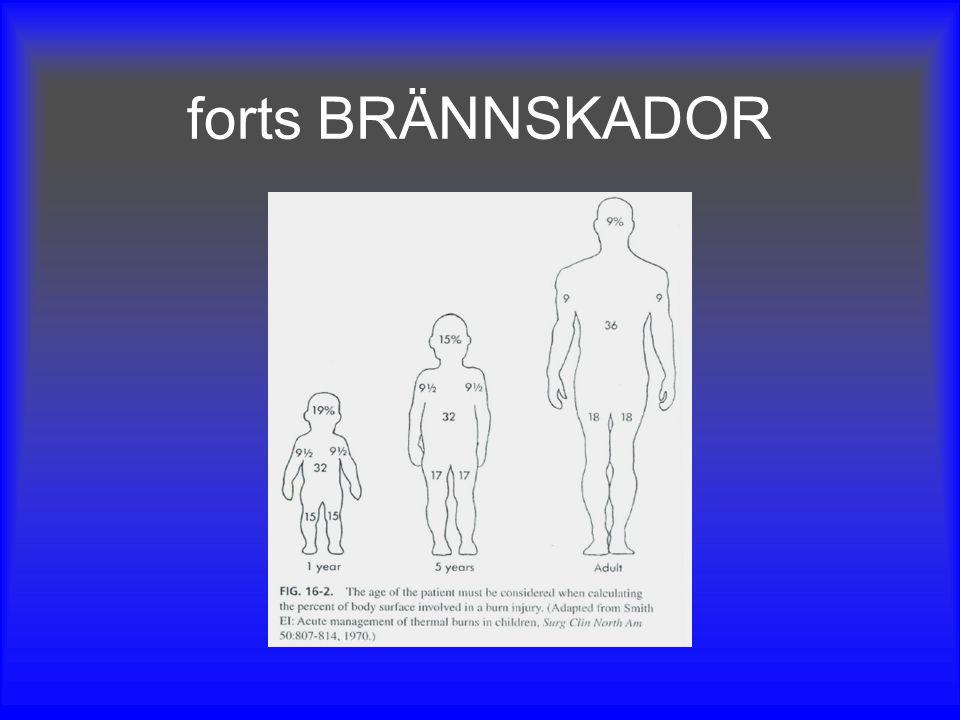 forts BRÄNNSKADOR Tips: Barnets egna handflata motsvarar 1%