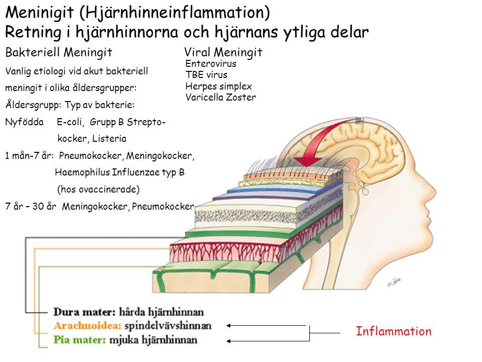 Meninigit (Hjärnhinneinflammation)