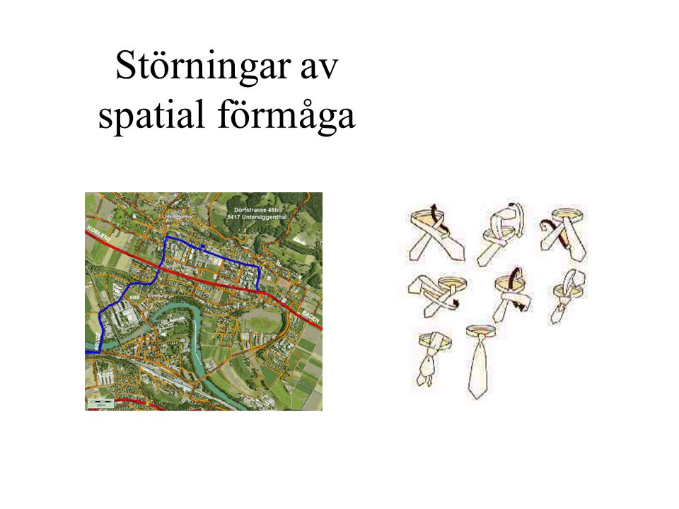 Störningar av spatial förmåga