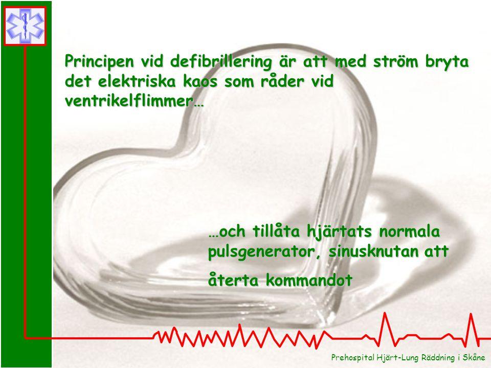…och tillåta hjärtats normala pulsgenerator, sinusknutan att