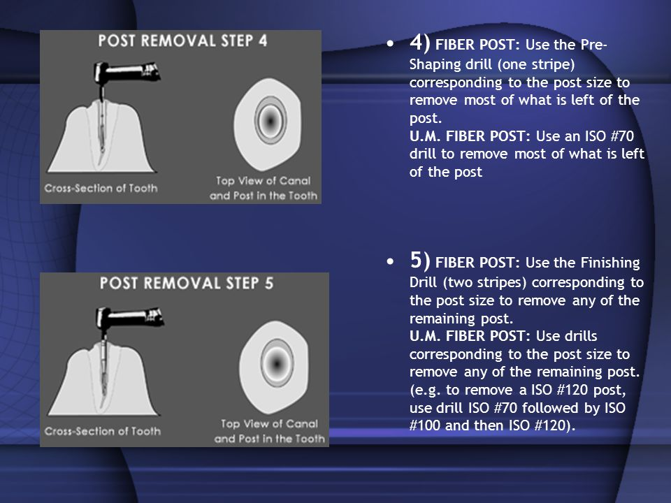 4) FIBER POST: Use the Pre-Shaping drill (one stripe) corresponding to the post size to remove most of what is left of the post. U.M. FIBER POST: Use an ISO #70 drill to remove most of what is left of the post