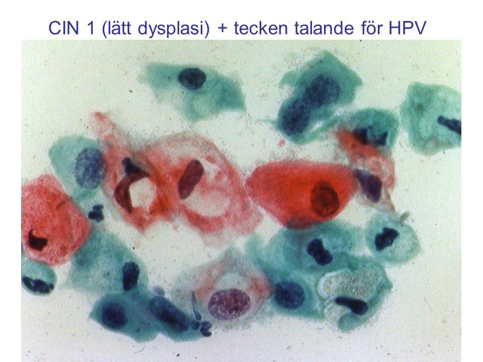 CIN 1 (lätt dysplasi) + tecken talande för HPV