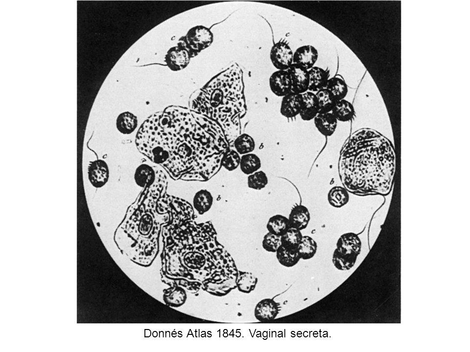 Donnés Atlas 1845. Vaginal secreta.