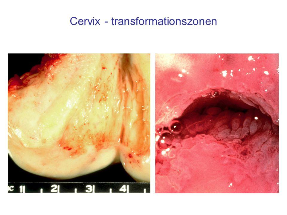 Cervix - transformationszonen