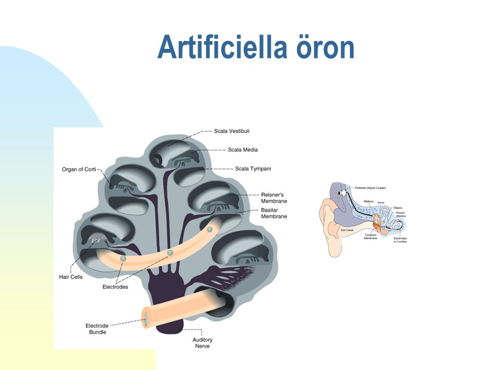 Artificiella öron