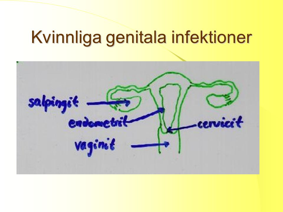 Kvinnliga genitala infektioner