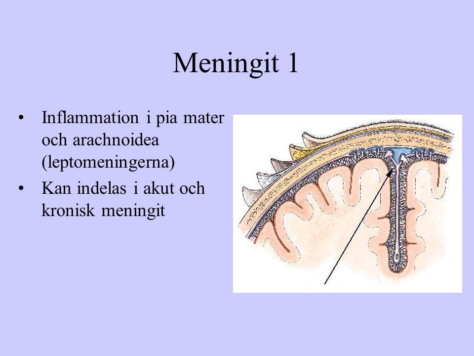 Meningit 1 Inflammation i pia mater och arachnoidea (leptomeningerna)