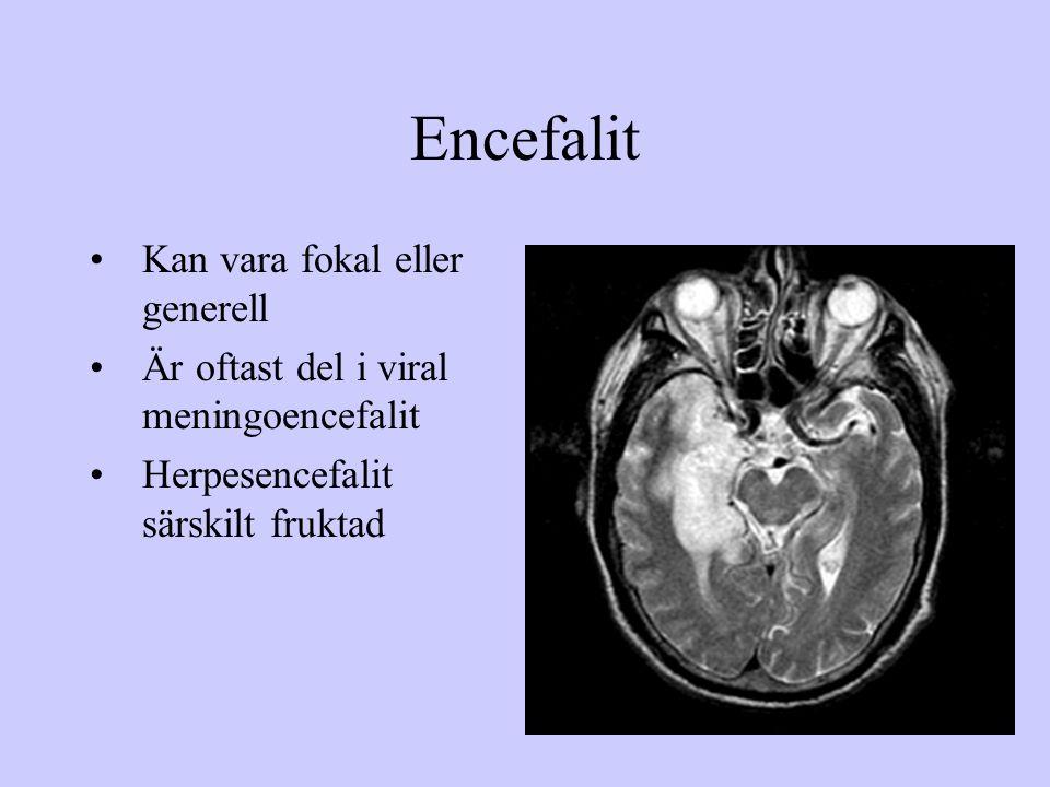 Encefalit Kan vara fokal eller generell