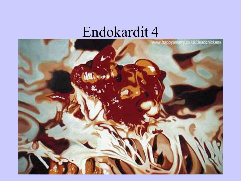 Endokardit 4