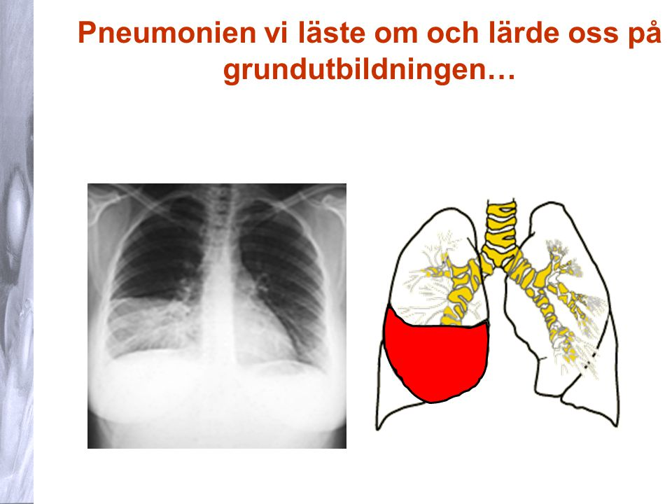 Pneumonien vi läste om och lärde oss på grundutbildningen…