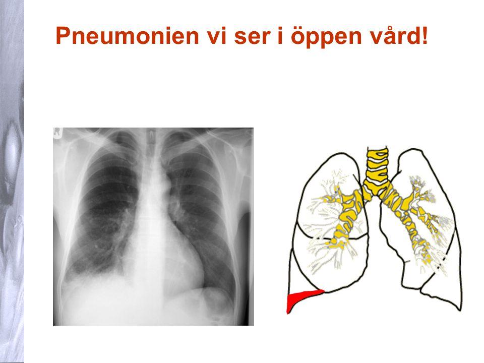 Pneumonien vi ser i öppen vård!