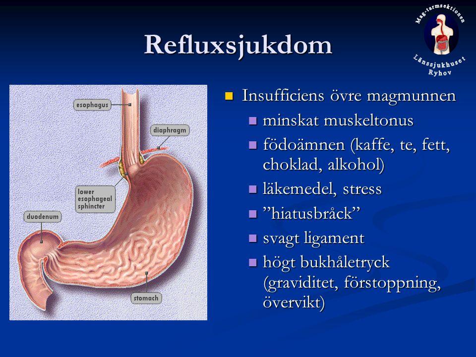 Refluxsjukdom Insufficiens övre magmunnen minskat muskeltonus