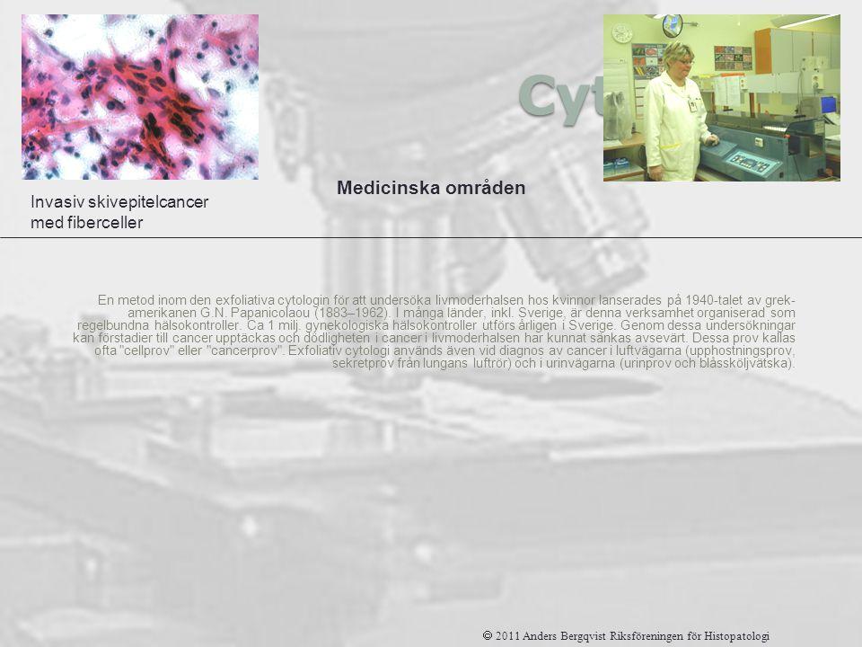 Cytologi Medicinska områden Invasiv skivepitelcancer med fiberceller