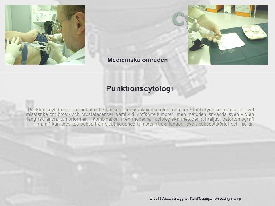 Cytologi Punktionscytologi Medicinska områden