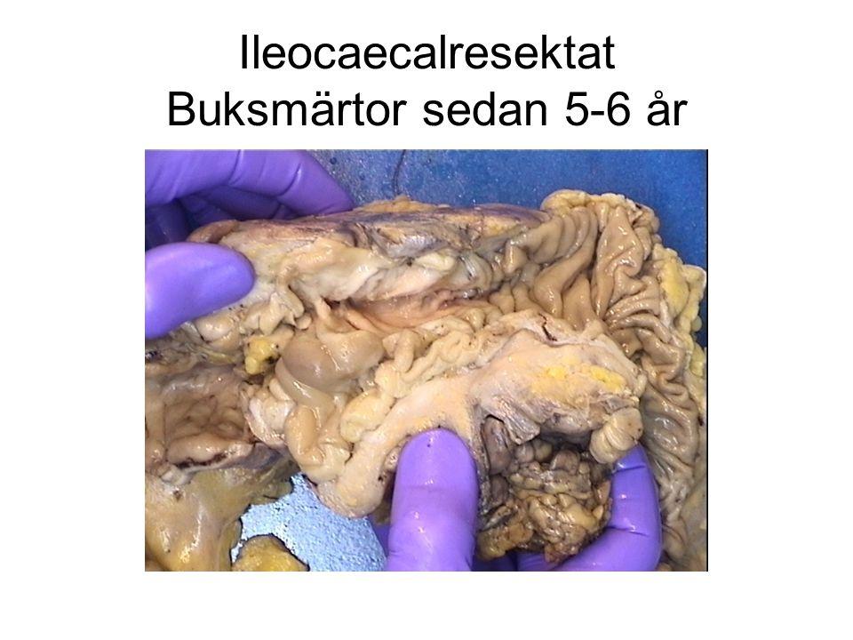 Ileocaecalresektat Buksmärtor sedan 5-6 år