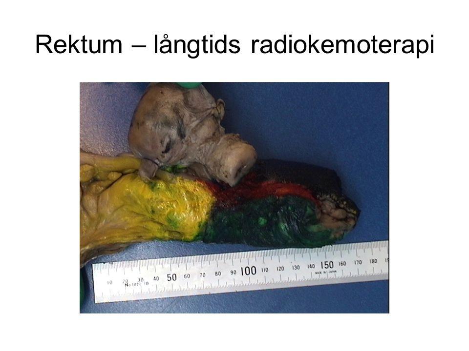 Rektum – långtids radiokemoterapi