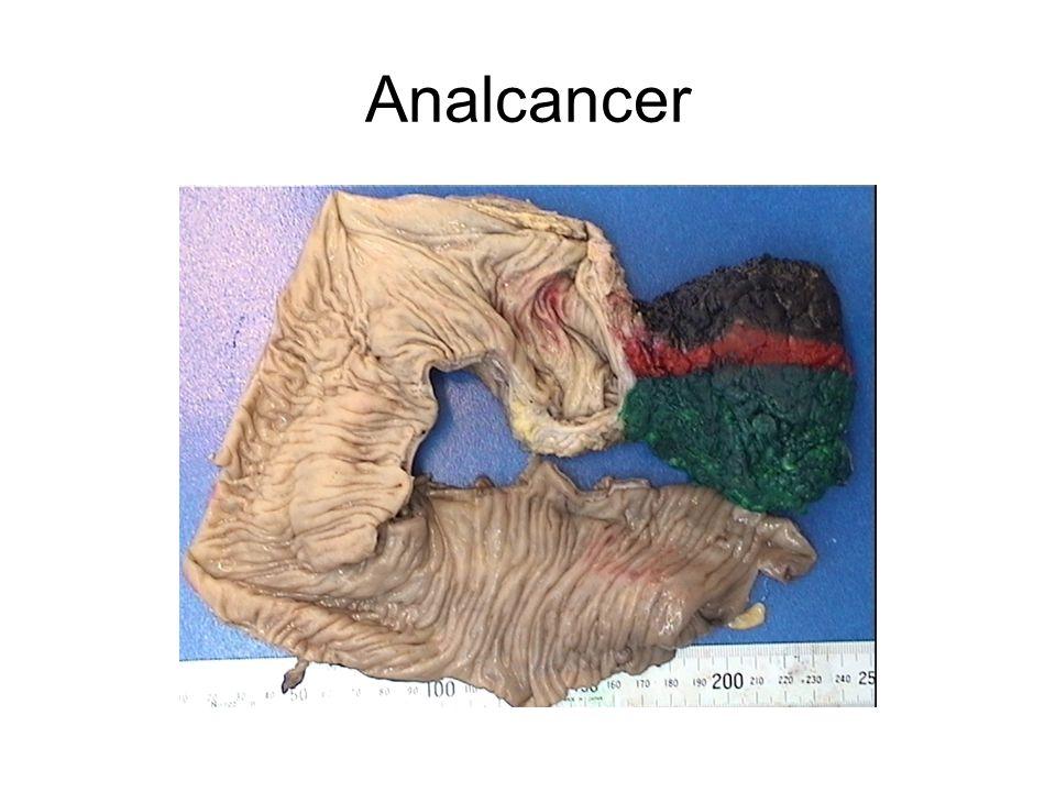 Analcancer