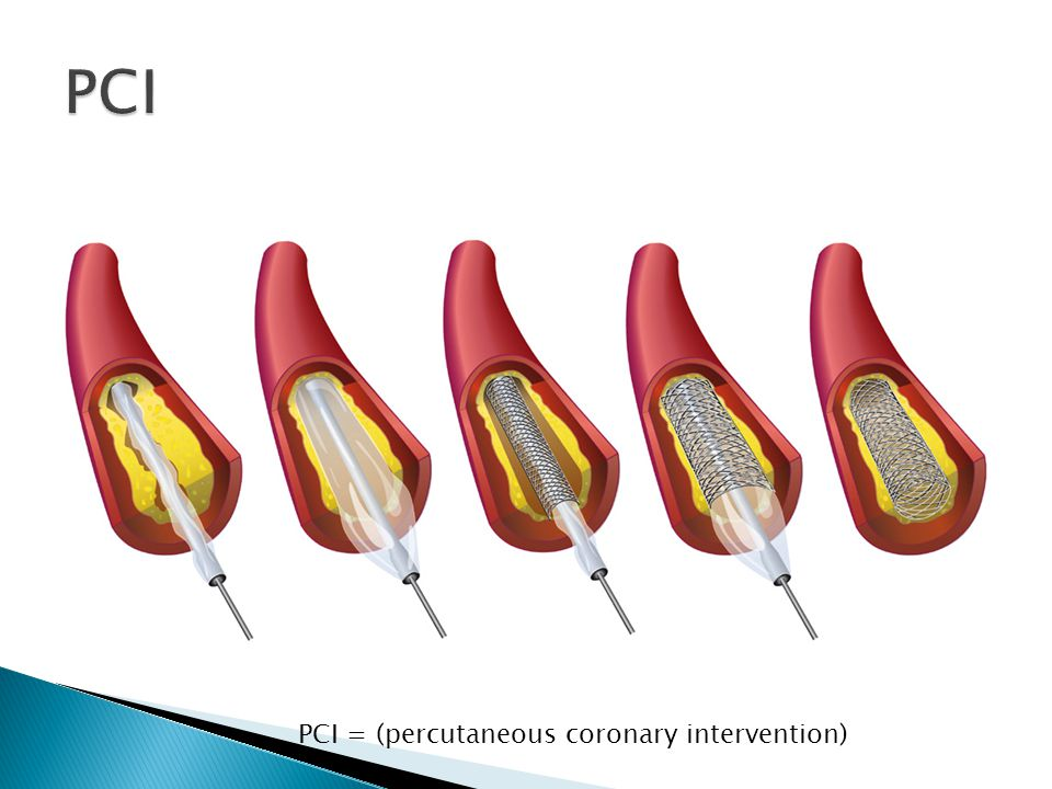 PCI PCI = (percutaneous coronary intervention)
