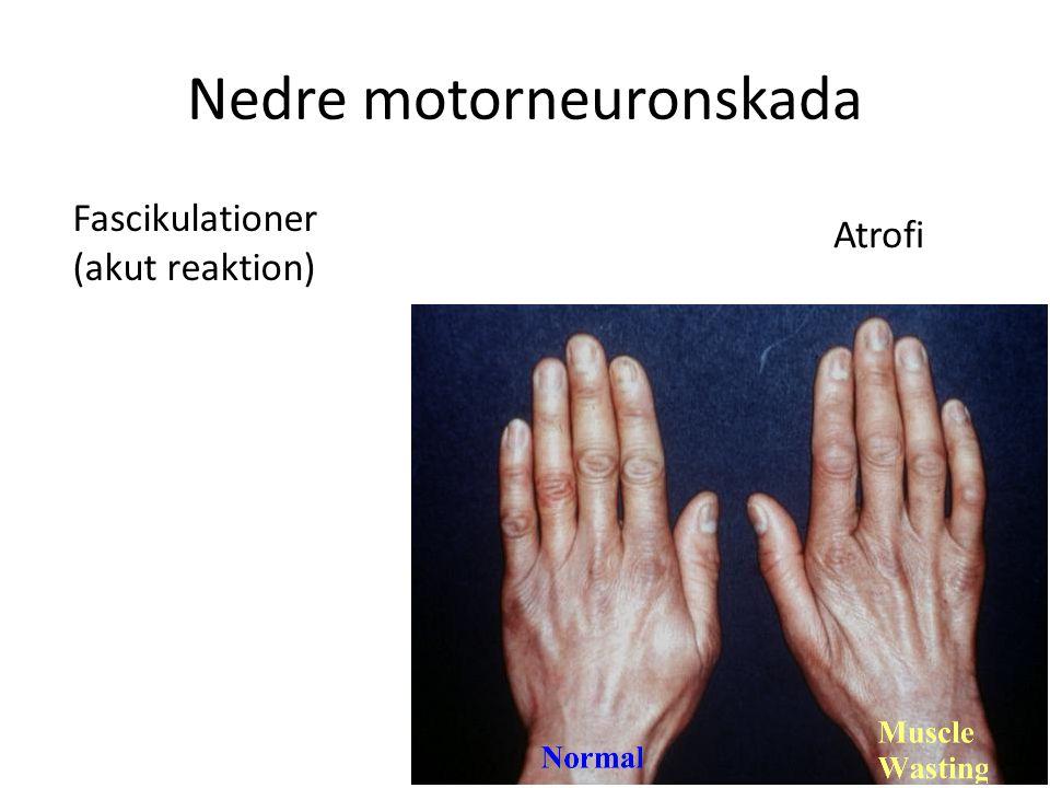 Nedre motorneuronskada