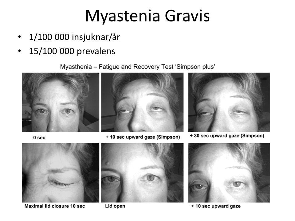 Myastenia Gravis 1/100 000 insjuknar/år 15/100 000 prevalens