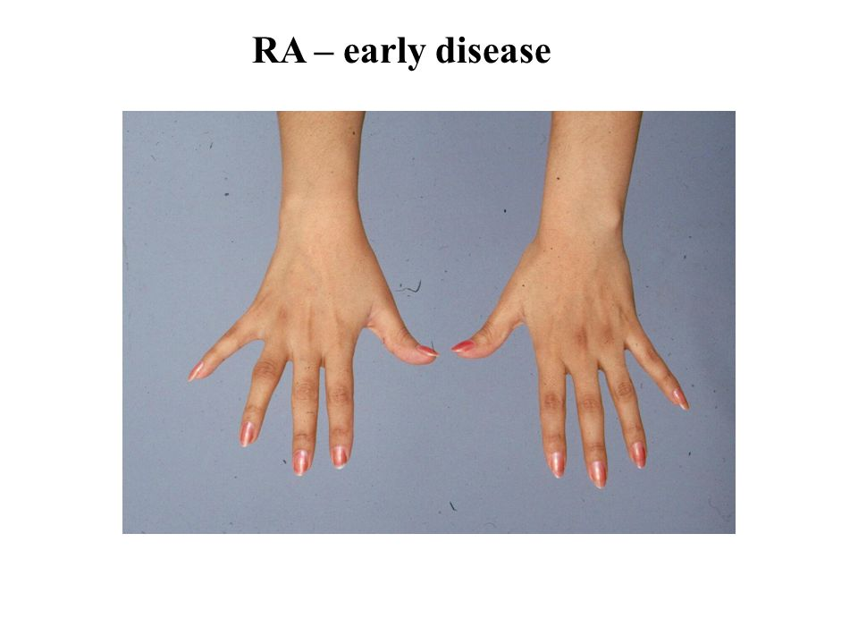 RA – early disease