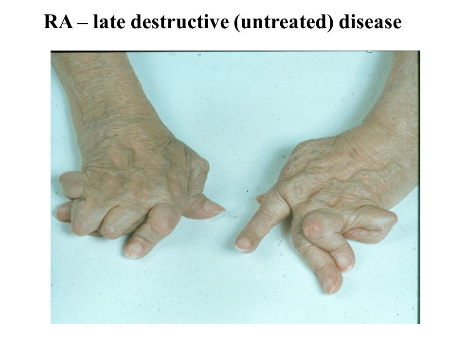 RA – late destructive (untreated) disease