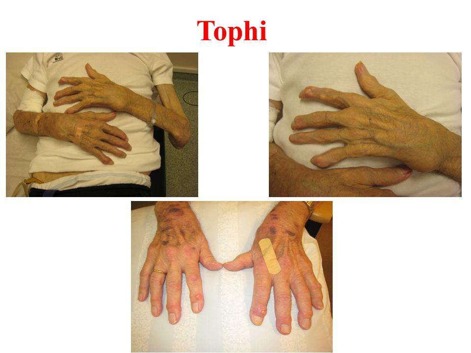 Tophi