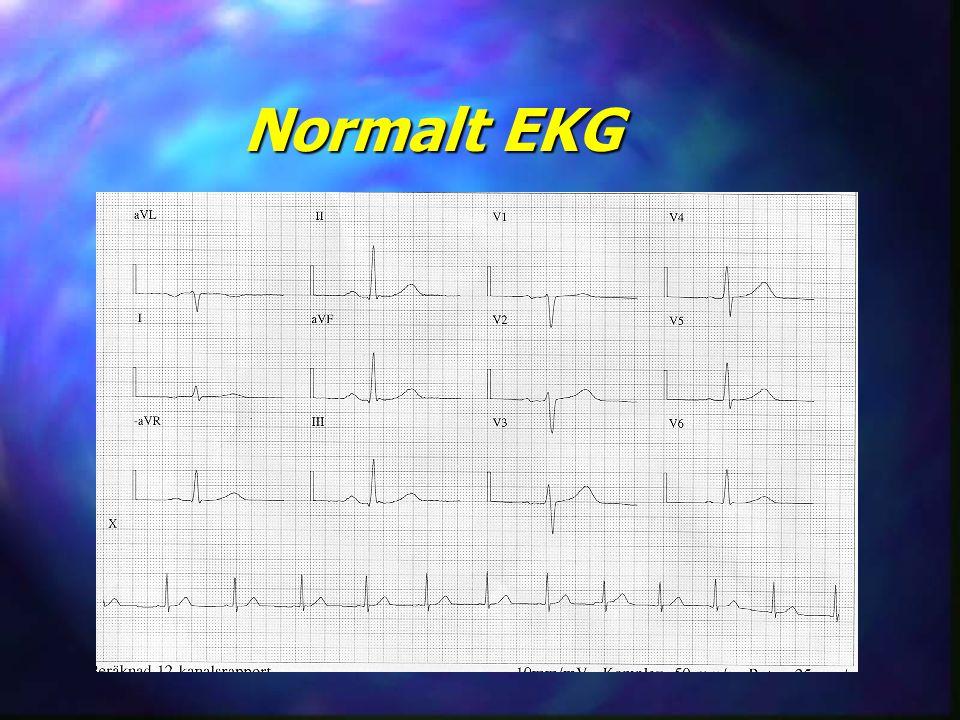 Normalt EKG