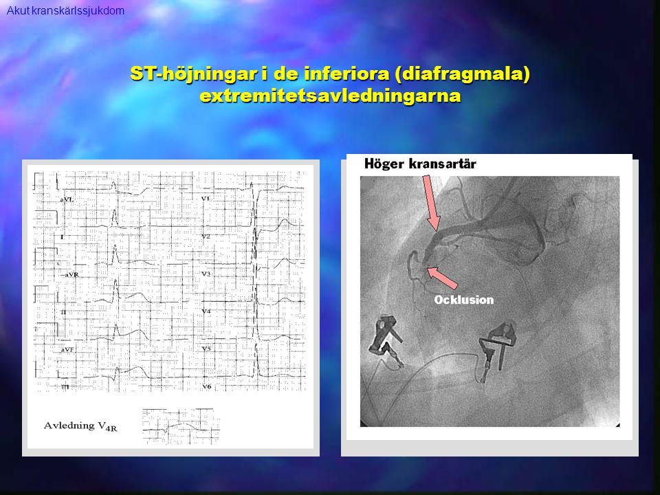 ST-höjningar i de inferiora (diafragmala) extremitetsavledningarna