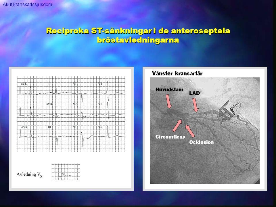 Reciproka ST-sänkningar i de anteroseptala bröstavledningarna