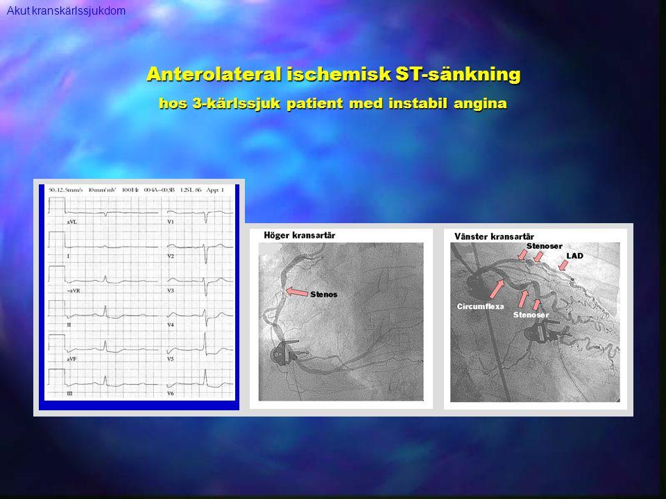 Anterolateral ischemisk ST-sänkning
