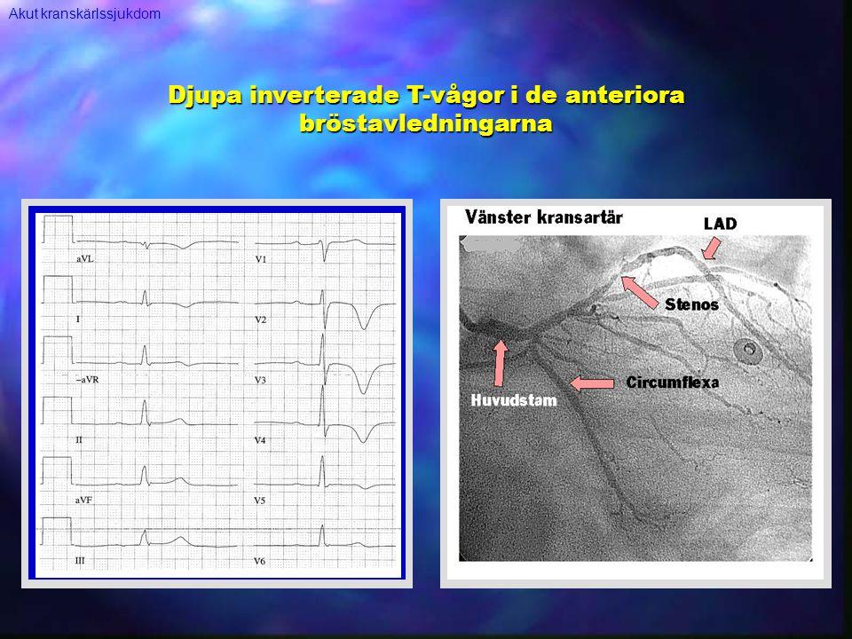 Djupa inverterade T-vågor i de anteriora bröstavledningarna