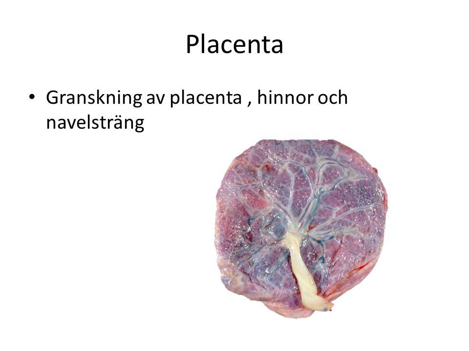 Placenta Granskning av placenta , hinnor och navelsträng