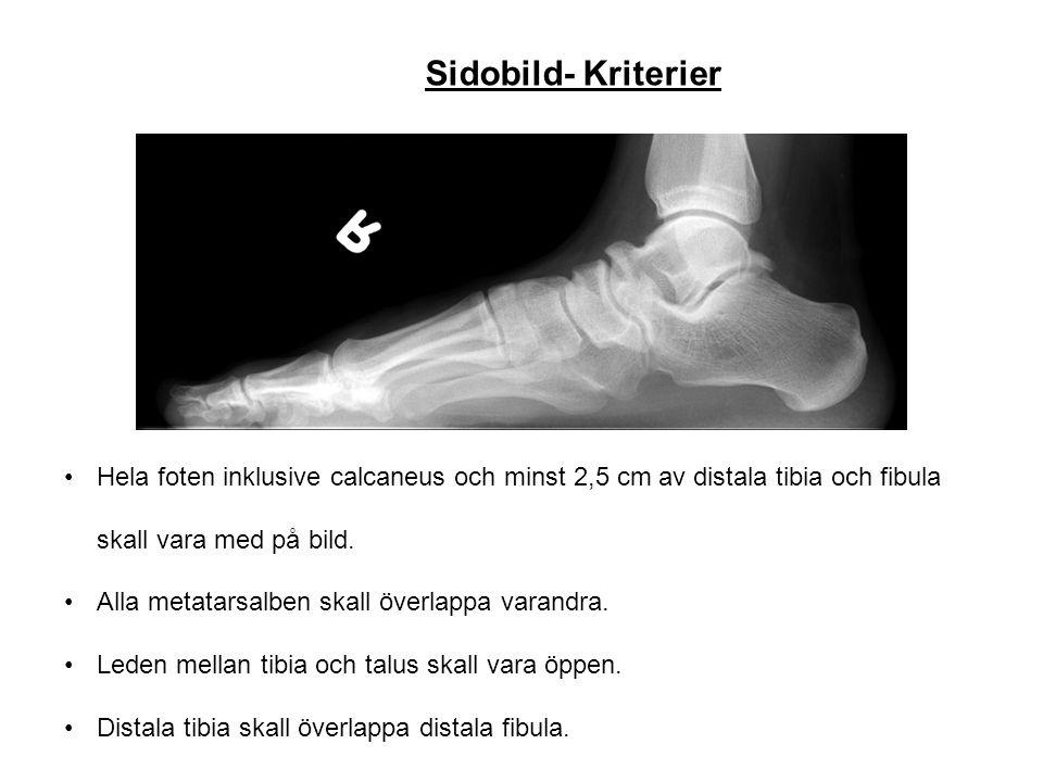 Sidobild- Kriterier Hela foten inklusive calcaneus och minst 2,5 cm av distala tibia och fibula skall vara med på bild.