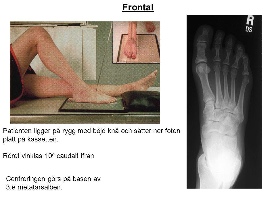 Frontal Patienten ligger på rygg med böjd knä och sätter ner foten